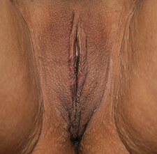 Labia Majora After