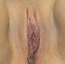 After Labiaplasty