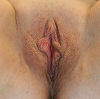 Scarless Labiaplasty Before