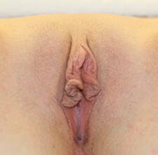 Labia Before