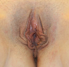 Vaginoplasty Before