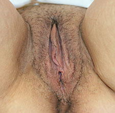 Vaginoplasty After
